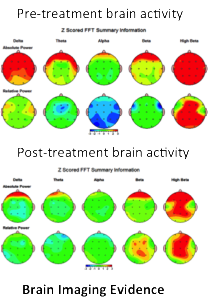 brainscans from ppt